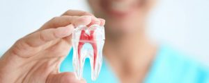 Pain After Root Canal What to Expect and When to Seek Help