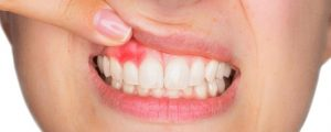 Types of Gum Disease Stages Factors Related Conditions